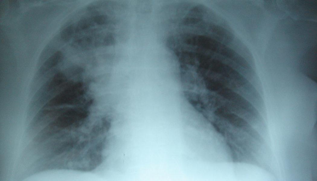 La contaminación afecta los huesos