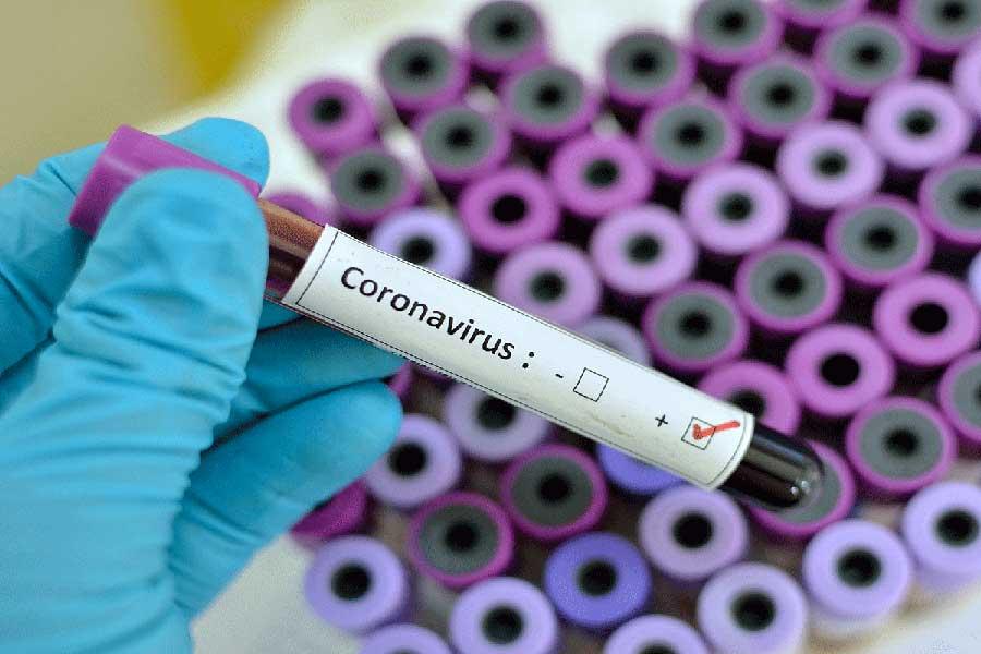 121 nuevos casos de Covid-19 en el país